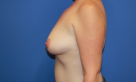 Breast Procedures Patient 35364 Before Photo # 5