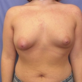 Breast Augmentation Patient 49027 Before Photo # 1