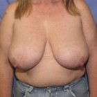 Breast Reduction Patient 68062 Photo 1