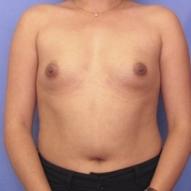 Breast Augmentation Patient 24030 Before Photo # 1