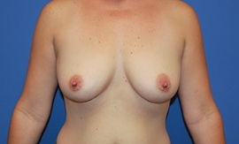 Breast Procedures Patient 35364 Before Photo Thumbnail # 1