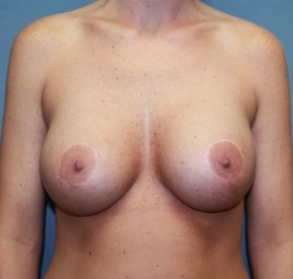 Breast Augmentation Patient 55362 After Photo Thumbnail # 2