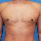 Male Breast Reduction Gallery Patient