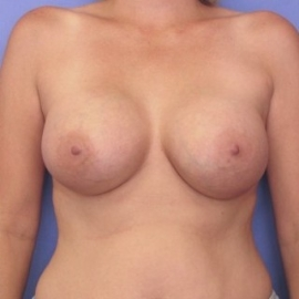 Breast Augmentation Patient 54645 After Photo # 2