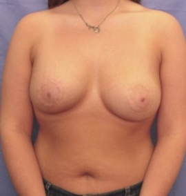 Breast Reconstruction Patient