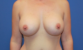 Breast Procedures Patient 35364 After Photo Thumbnail # 2