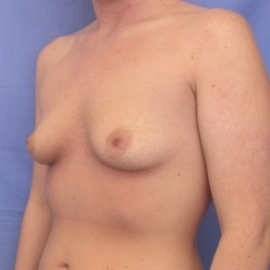 Breast Augmentation Patient 25671 Before Photo # 3