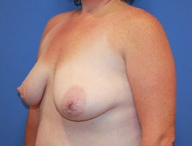 Breast Procedures Patient 96264 Before Photo Thumbnail # 3