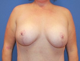 Breast Procedures Patient 96264 After Photo Thumbnail # 2