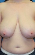 Breast Reduction Patient 20387 Photo 1