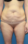 Rejuvenation after weight loss Patient