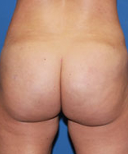Butt Augmentation Patient