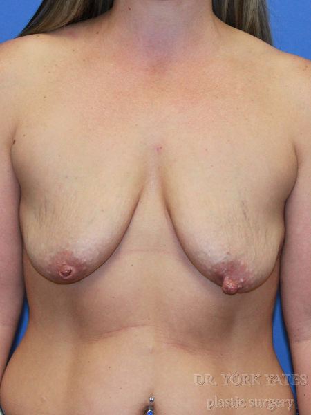 Patient # 15982 Before Photo # 3