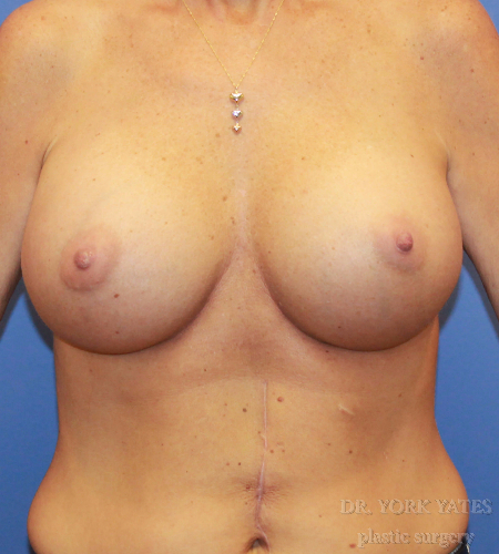 Round Silicone Implant Patient