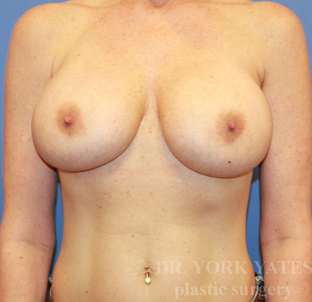 Breast Revision - (Breast Redo) Patient