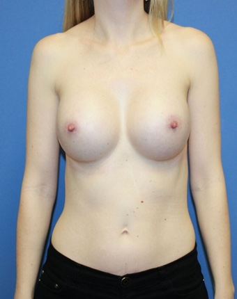 Breast Augmentation Patient