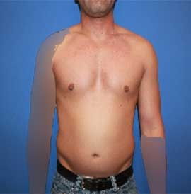 Male Breast Reduction Patient