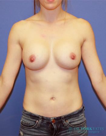 Patient # 96692 After Photo # 2