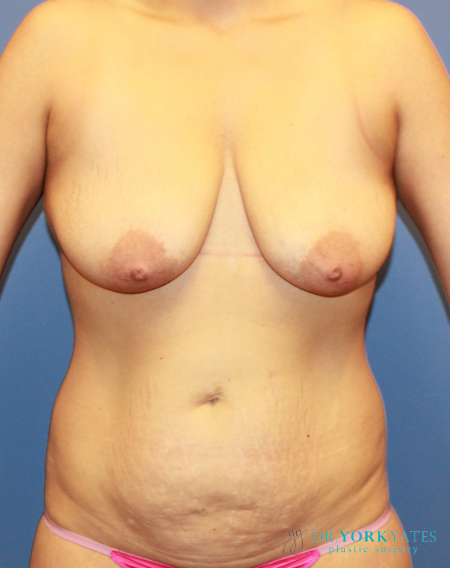 Breast Lift Patient
