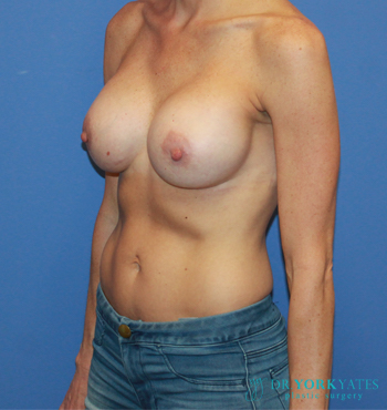 Silicone Breast Augmentation Patient